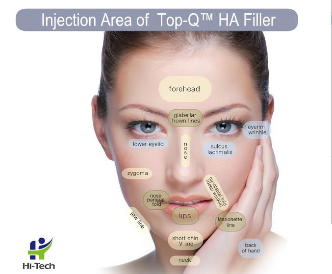 New TOPQ Pure Cross-linked Hyaluronic Acid Dermal Fillers For Anti Wrinkle Injection / Bio - fermentation HA