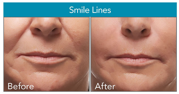 New TOPQ Pure Cross-linked Hyaluronic Acid Dermal Fillers For Anti Wrinkle Injection / Bio - fermentation HA